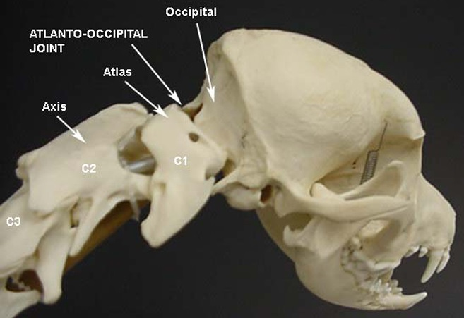 "The atlas is the spinal vertebra (C1) closest to the skull. It sits next to the foramen magnum, the hole in the occipital bone. The ""atlanto-occipital joint"" is the connection between the atlas and the occipital bone, and is stabilized by ligaments. ""Atlanto-occipital overlapping"" (AOO) is characterized by a decreased distance between the atlas and the occipital bone. In some cases, the dorsal arch of the atlas may actually protrude into the foramen magnum. See the image (courtesy of: www.wikispaces.com)."